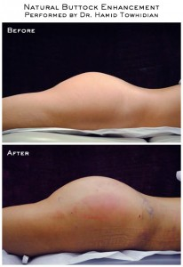 Patient Before and After Natural Buttock Enhancement