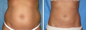 Smartlipo: Patient Before And After Image