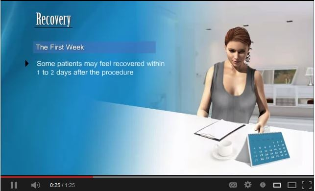 What To Expect During Recover After Smartlipo. Watch Video