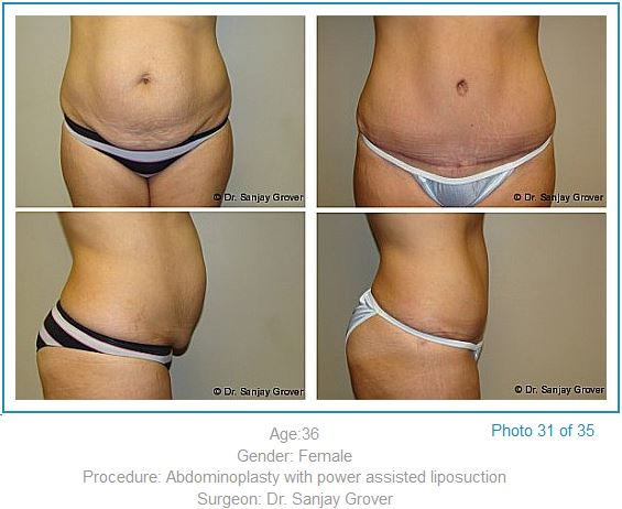 Tummy Tuck Before and After Patient Case By Dr. Sanjay Grover
