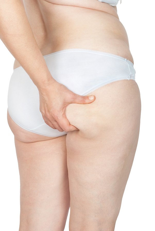 Cellulaze Helps Reduce Cellulite, Not Fat