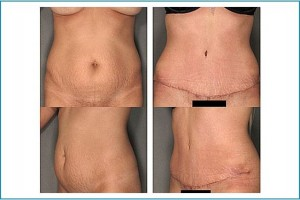 Tummy Tuck Courtesy of Dr. Joel Beck