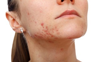 Ance Leaves Scars Chemical Peels an Help