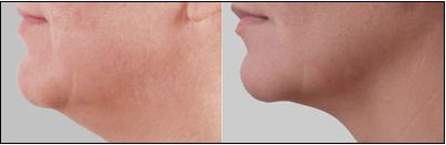 Exilis Before & After Photos, Courtesy of Dr. Alexander J. Covey, MD