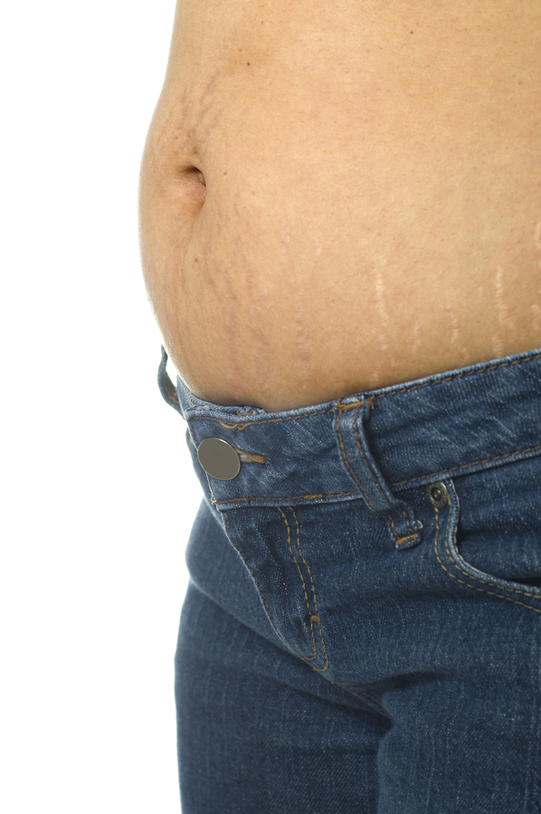 WebMD Survey: Learn Facts About Belly Fat: How To Fight It