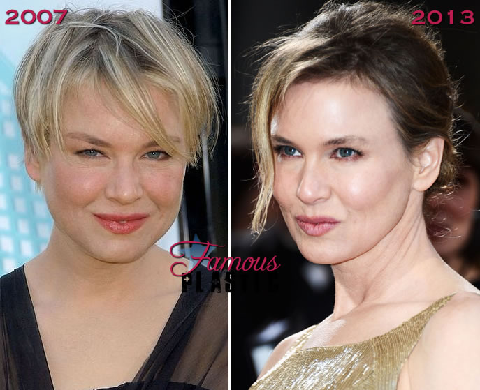 Renee Zellweger's New Facial Profile Featured on FamousPlastic.net