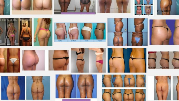 brazilian-butt-augmentation-images