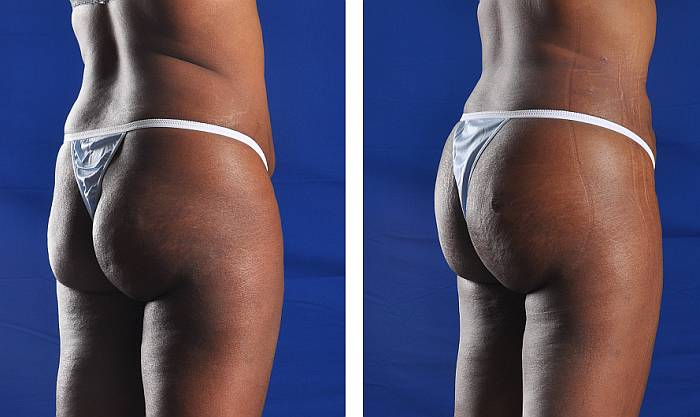 Brazilian Butt Lift by Dr. Hall