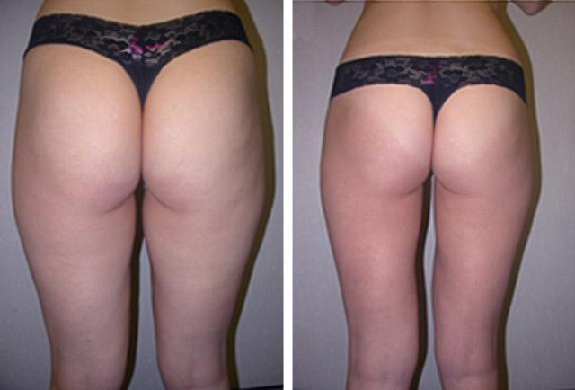 chin liposuction recovery