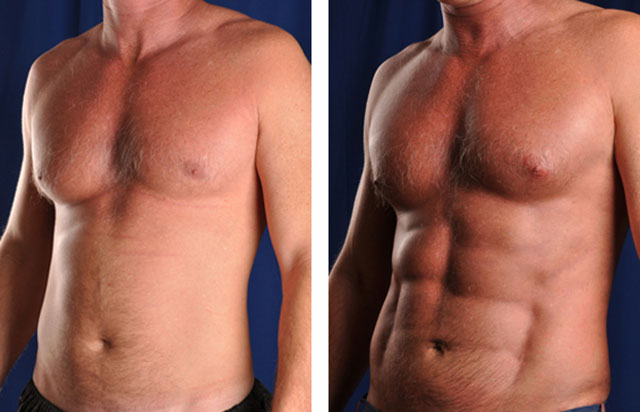Smart Lipo Before And After Pictures-4033