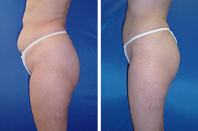 Smart Lipo Before And After Pictures
