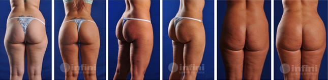 Infiniskin - Phoenix Liposuction Butt Lift Patients