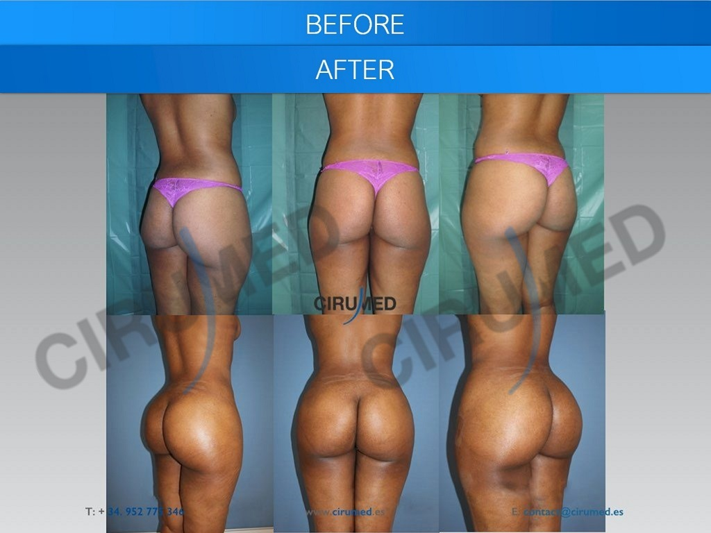 Before & After Photo
